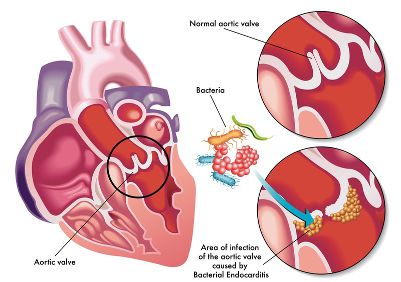 Pathogenic Microbes Infect the Heart